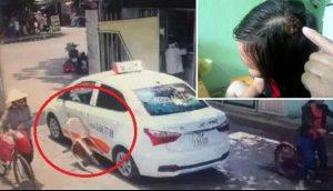 Thực hư vụ bảo vệ bệnh viện đánh nữ tài xế taxi vỡ đầu